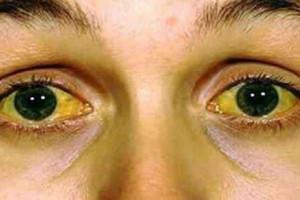 Penyebab Mata Kuning Dan Solusinya