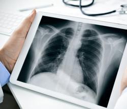 X-Ray, Penemuan Penting yang Tak Disengaja